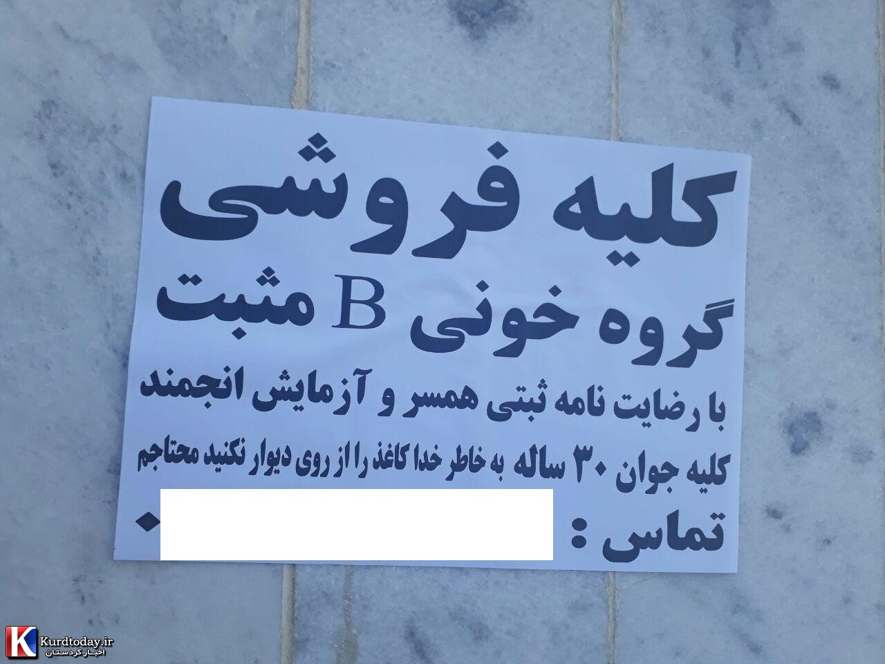 Image result for کلیه فروشی
